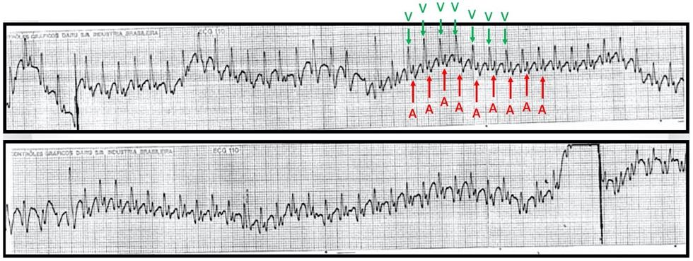Eletrodo esofágico demonstrando taquicardia com relação A:V 1:1 (a).