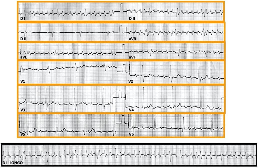 Figura 2: ECG (definição de alta hospitalar)