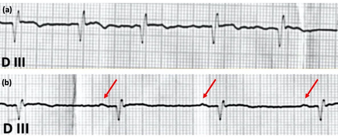 Figura 3: Ritmo antes da cardioversão (a) é fibrilação atrial demonstrado pela irregularidade do complexo QRS e presença de onda f. Após a reversão, o ritmo sinusal é demonstrado (b).