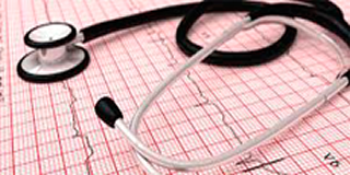 Fibrilação Atrial Causa AVC/Derrame